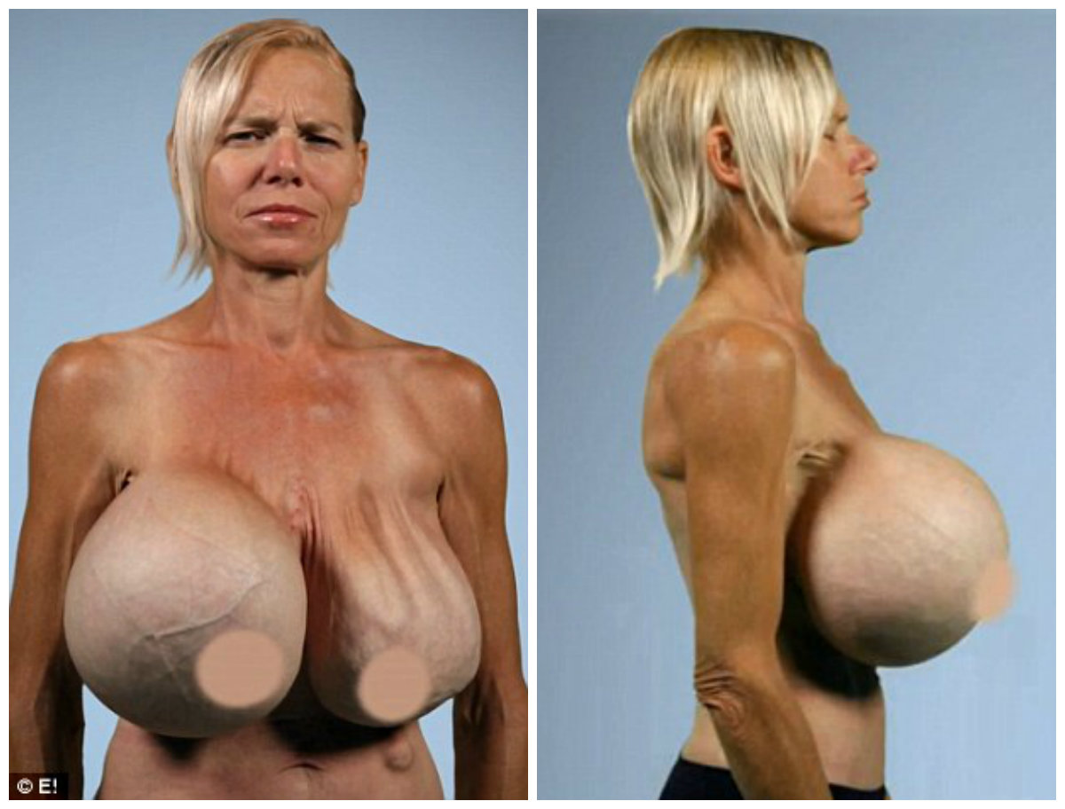 Silicone Gel-Filled Breast Implants